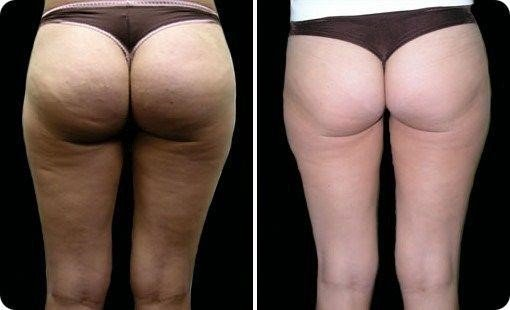 My Cellulite Solution Review – What's the Body weight Hack About?, PeakToBest