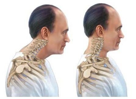 Forward Head Posture Fix Program Review – Does It Really Work?, PeakToBest